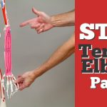Best Tennis Elbow Treatments to STOP Pain